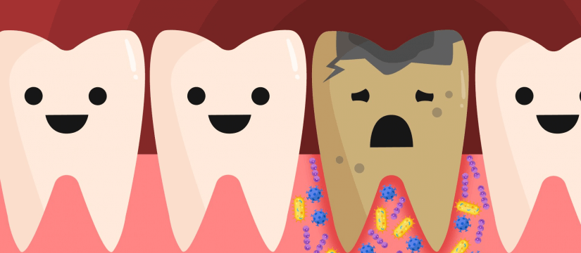 Which Things Can Ruin Your Teeth?