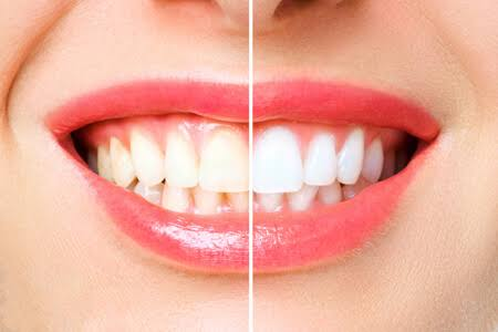 6 Things to Know About Teeth Whitening