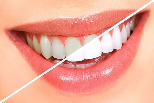 7 Easy Ways to Protect Your Teeth
