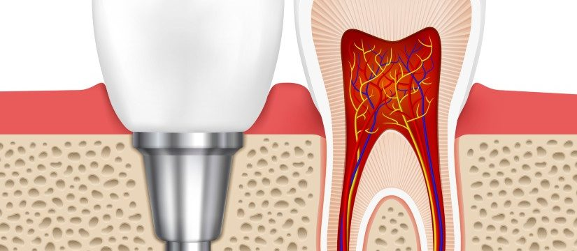 5 Important Things to know about Dental Implants