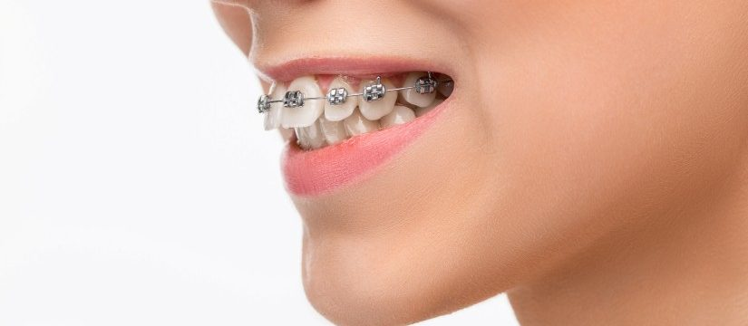 7 Dental Care Tips for People with Braces